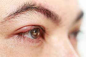 Blepharitis Treatment Euless, TX