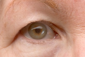 Ptosis treatment in Watauga - Fort Worth, TX
