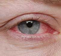 Pink Eye Treatment in Milton, GA
