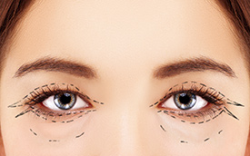 Blepharoplasty in Fair Lawn, NJ